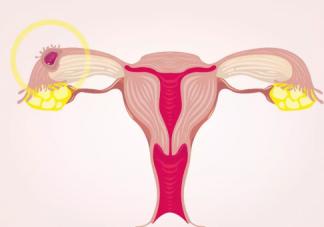 输卵管介入怎么做 输卵管介入后能怀孕吗