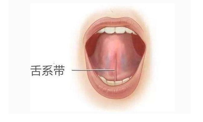 舌系带过短治疗的黄金时间 舌系带过短会带来什么问题