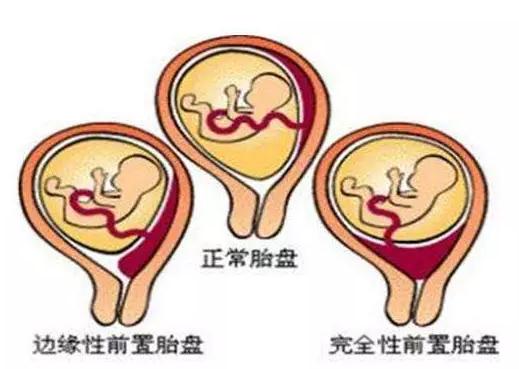 怀孕胎盘前壁后壁有什么区别 前壁和后壁哪个更有利于分娩
