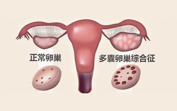 多囊卵巢综合征怀孕初期要注意什么 多囊卵巢综合征怀孕注意事项