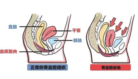 孕妇咳嗽漏尿怎么回事 孕妇咳嗽漏尿的原因