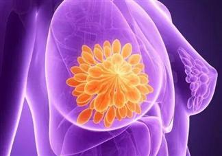 乳腺癌保乳手术安全吗 什么情况下可以进行保乳手术治疗