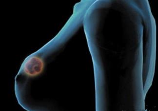 乳腺癌治疗后会复发吗 乳腺癌复发的症状