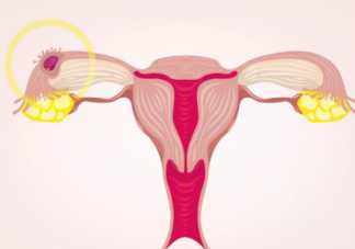宫外孕没有症状是怎么回事 宫外孕怎么发现