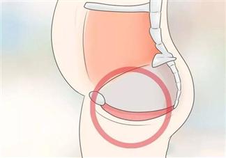 剖宫产和顺产哪个对盆底肌伤害更大 盆底肌损伤对女性有什么危害