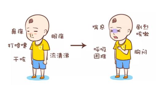 孩子对柳絮过敏哮喘怎么办 孩子怎么预防柳絮过敏