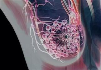 乳腺癌是遗传的吗 胸大的女性更容易得乳腺癌吗