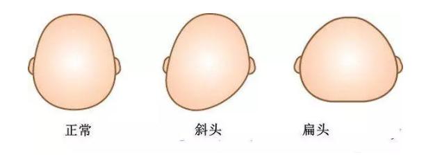 婴儿正常头型什么样的 婴儿正常头型图片正面侧面