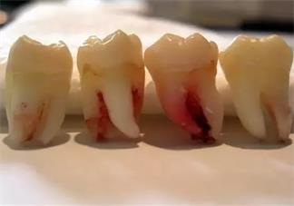 孕妇智齿发炎几天能好 孕妇智齿发炎可以拔牙吗