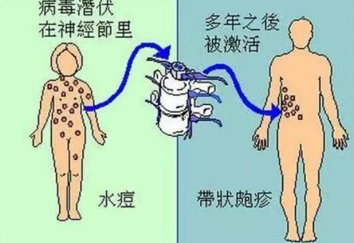 哺乳期带状疱疹还能喂奶么 哺乳期带状疱吃什么药好