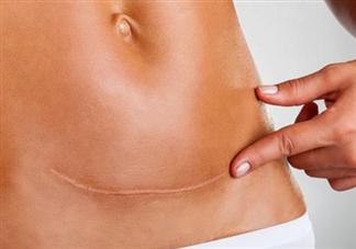 剖腹产疤痕增生受哪些因素影响 如何预防剖腹产疤痕增生