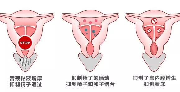 上曼月乐环会长了囊肿吗 子宫长囊肿和曼月乐环有关吗