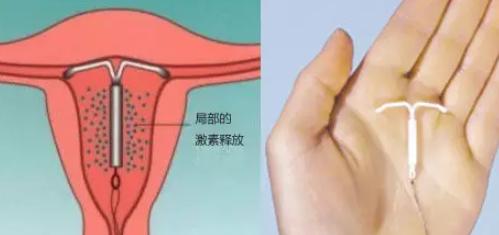 上曼月乐环会脸上长痘吗 曼月乐环孕激素会引起长痘吗