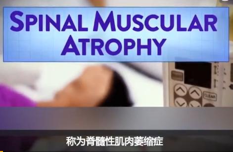 小儿脊髓性肌肉萎缩基因疗法价格 史上最贵药一支1448万元