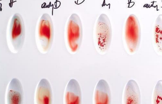 血型和怀孕有关系吗|血型和怀孕有关系吗 如何能快速助孕
