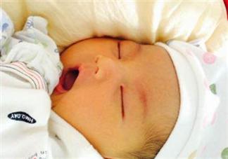 孕妇吃橘子宝宝会黄疸吗 新生儿为什么得黄疸