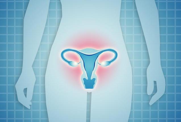 宫颈炎和性生活过度有关吗 引起女性宫颈炎的原因有哪些