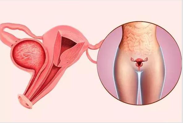 怀孕后发现宫颈癌孩子能要吗 怀孕后发现宫颈癌怎么办