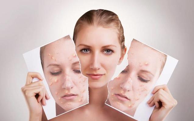 怀孕皮肤变差是怎么回事 怎么做好孕期皮肤护理