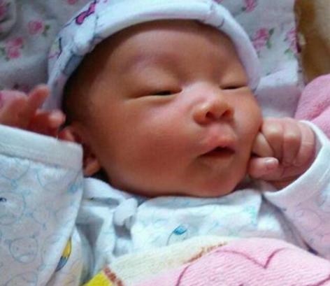 新生儿黄疸和孕妇有关系吗 新生儿黄疸怎么办