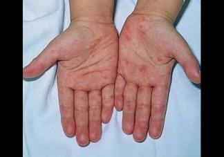 宝宝得了手足口病怎么办 护理手足口病宝宝的方法