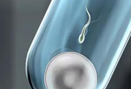 输卵管通而不畅促排可以吗 输卵管通而不畅做什么运动比较好