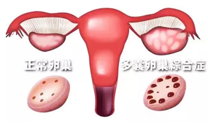 多囊患者可以自然排卵吗 多囊患者能自然怀孕吗
