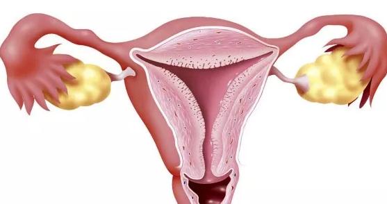 卵巢多囊样改变需要治疗治疗吗 卵巢保养吃什么好