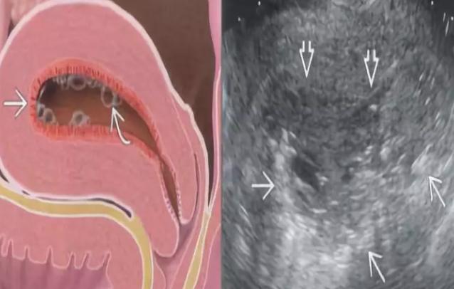 子宫内膜炎怎么治疗 子宫内膜炎的症状标准怎么判断