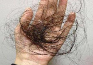 产后脱发会持续多久 产后脱发怎么护理