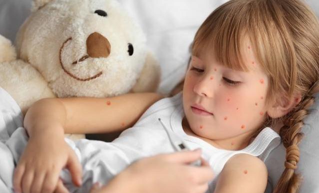 宝宝出水痘怎么快速止痒 出水痘应该要注意什么