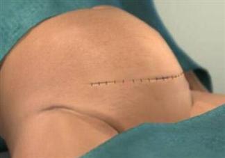 怎么观察剖腹产伤口愈合程度 影响剖腹产伤口愈合程度的因素