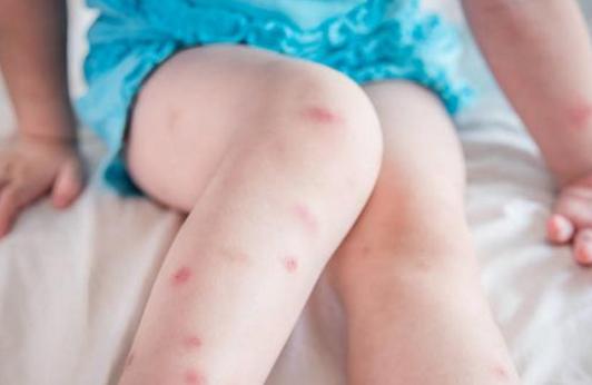 宝宝被蚊子咬了能用风油精吗 宝宝被蚊子咬了怎么办
