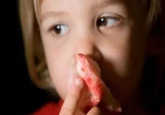 孩子流鼻血仰头还是低头 孩子流鼻血了怎么办