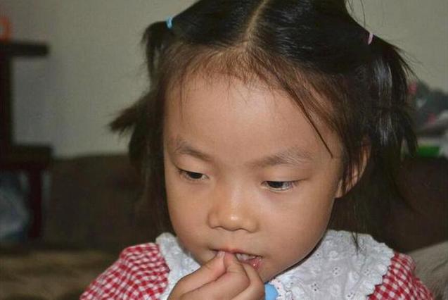 孩子为什么总是啃手指 如何改掉孩子啃手指的习惯