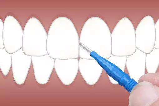牙线和冲牙器哪个更好用 牙线和冲牙器哪个清洁力度更高