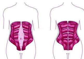 产后腹直肌分离怎么办 产后腹直肌分离如何康复