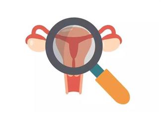 女性做宫腔镜检查有什么副作用 什么情况下要做宫腔镜检查