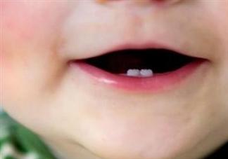 几岁给宝宝做乳牙护理合适 怎么给宝宝做乳牙护理