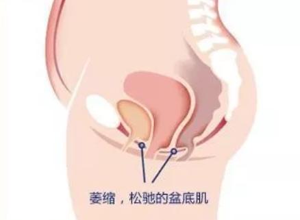 剖宫产要做盆底肌治疗吗 剖宫产不做顺产才做盆底肌治疗吗