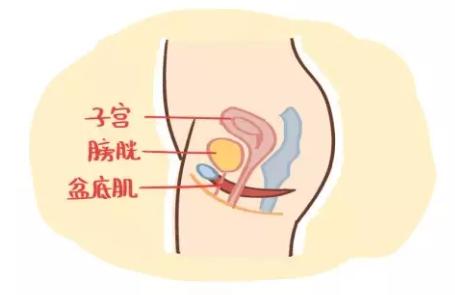 盆底肌治疗等到二胎做好吗 盆底肌治疗等生完二胎可以吗
