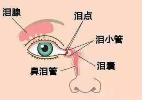宝宝先天性泪囊炎要动手术吗 新生儿泪囊炎怎么办