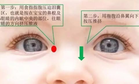 宝宝先天性泪囊炎有哪些治疗方法 宝宝先天性泪囊炎怎么保守治疗