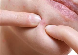 下巴长的小疙瘩是什么 怎么祛除闭口粉刺