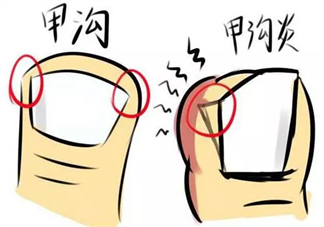甲沟炎患者可以碰水吗 甲沟炎是怎么引起的