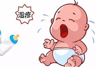 宝宝得湿疹了怎么办 宝宝得湿疹了如何护理