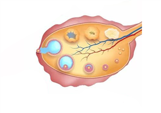 卵巢储备功能下降不好怀孕了吗 女性卵巢功能下降的征兆表现