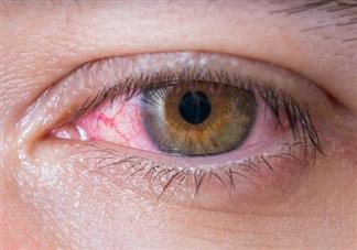 红眼病几天能治好 孩子得了红眼病如何在家护理