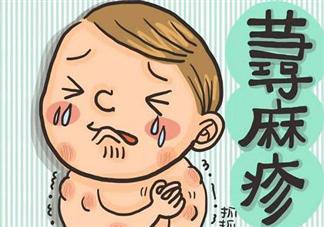 荨麻疹能根治吗 孩子得了荨麻疹如何治疗护理