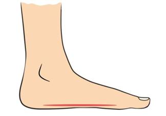 光脚走路容易得扁平足吗 孩子扁平足产生的原因